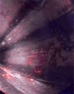 "This photograph was taken with a borescope (read colonoscope for rifles) inside the alleged death rifle barrel.  Note the large quantities of bullet jacket fouling left within the bore, one of many facts which tends to negate the ""science"" of ""ballistic fingerprinting""."